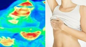 Tumore al seno, rivoluzionario test genetico al Policlinico di Siena