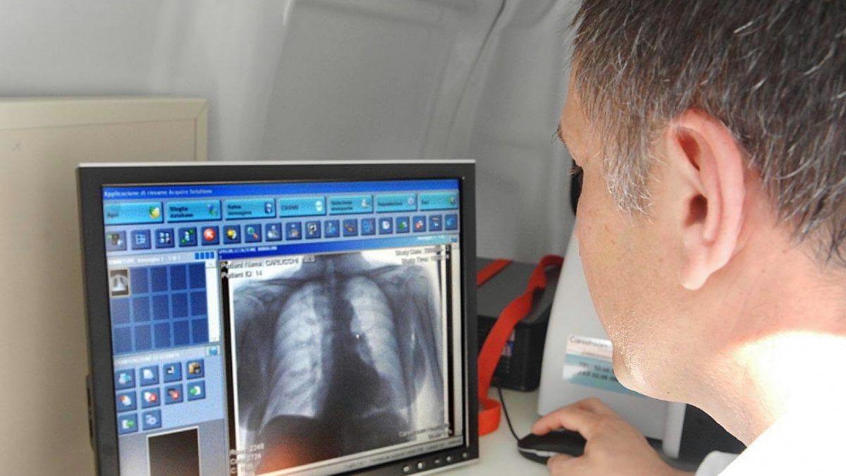 Coronavirus 30 dei guariti avrà problemi respiratori cronici