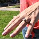 U snu progutala verenički prsten i završila na endoskopiji