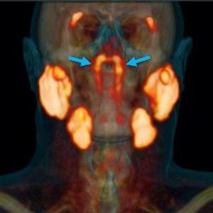 Iznenađujuće otkriće pljuvačnih žlezda za koje nismo znali da postoje