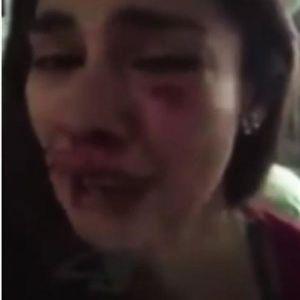 ФОТО + ВИДЕО: Позната актерка брутално претепана од момчето