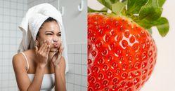 黑頭粉刺怎麼清?5大日常訣竅根除草莓鼻,擠三次就要停手是重點,最有效天然保養品推薦「這項」