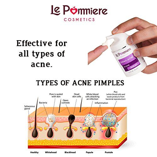 photo Wallpaper of Le Pommiere-Derma Acné 50 Ml Gel Para El Tratamiento Del Acné Ayuda-