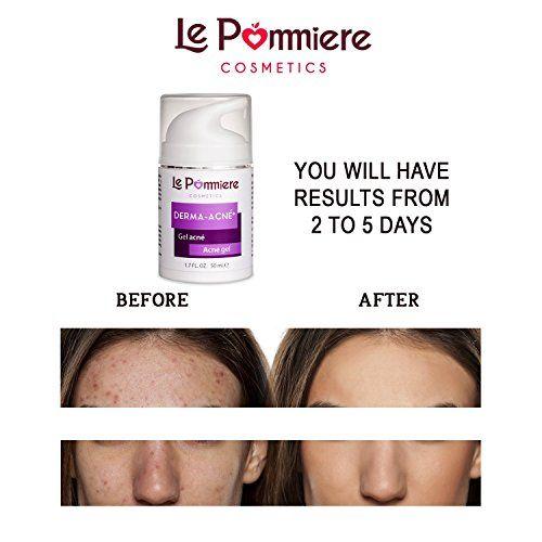 photo Wallpaper of Le Pommiere-Derma Acné 50 Ml Gel Para El Tratamiento Del Acné Ayuda A Limpiar-